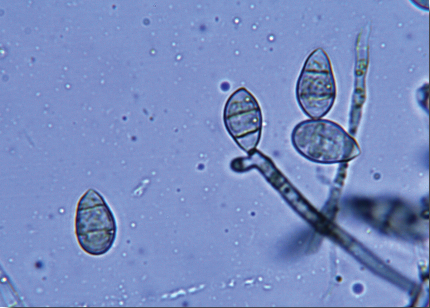 A microscopic view reveals blast spores.